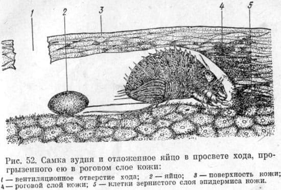 Самка чесоточного зудня и отложенное яйцо в эпидермисе